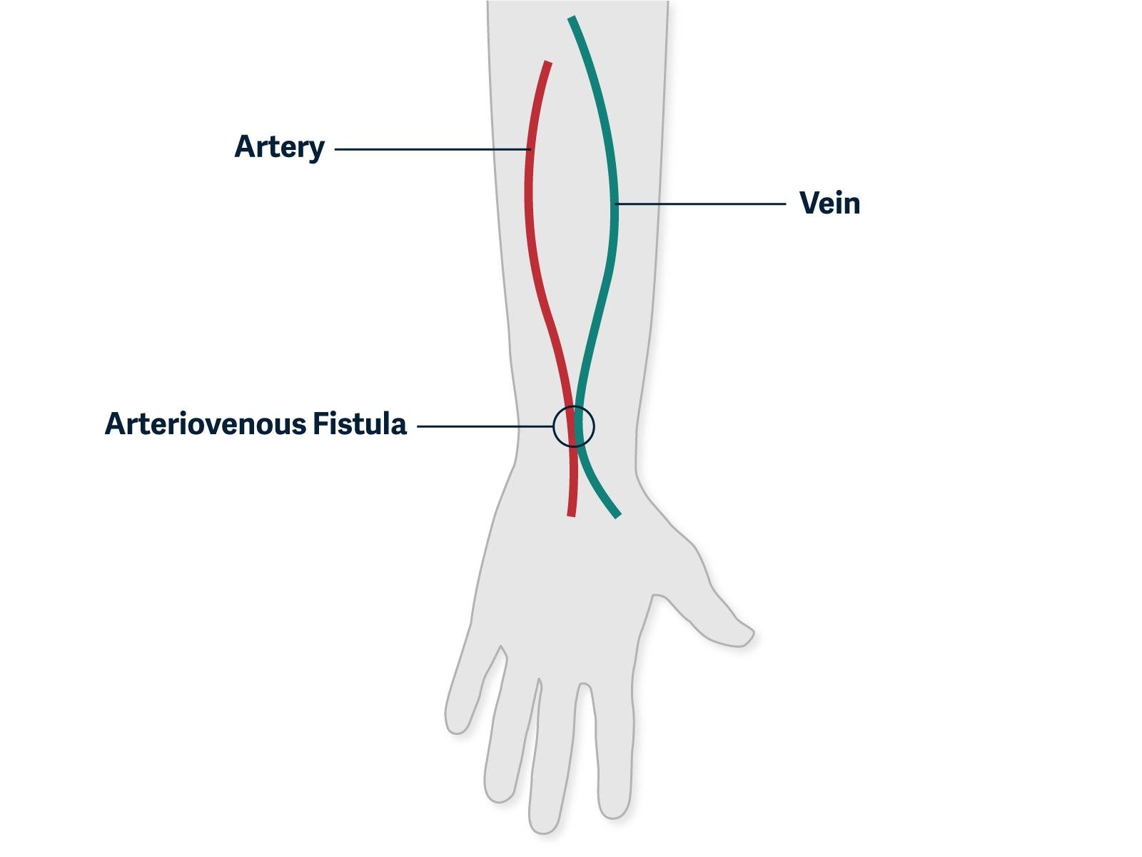 graphic showing a fistula