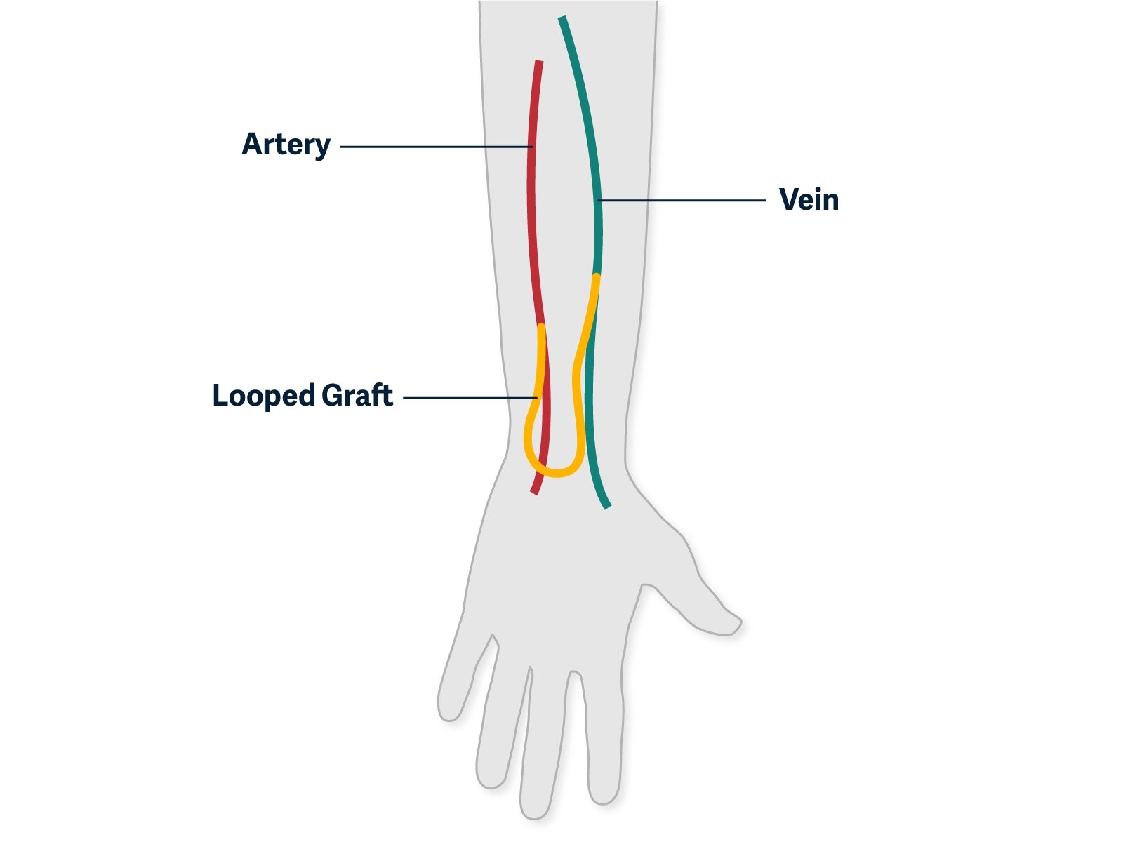 graphic showing a graft